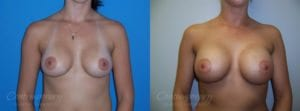 Case 10 Before and After Breast Augmentation Front View