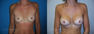 Case 17 Before and After Breast Augmentation Front View