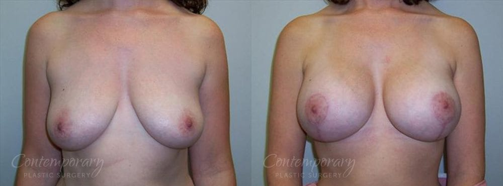 Case 3 Before and After Breast Augmentation Front View