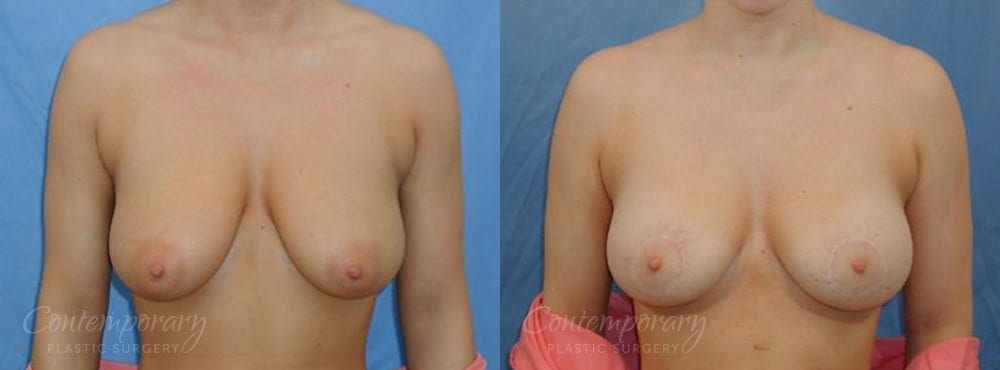 Case 11 Before and After Breast Lift Front View