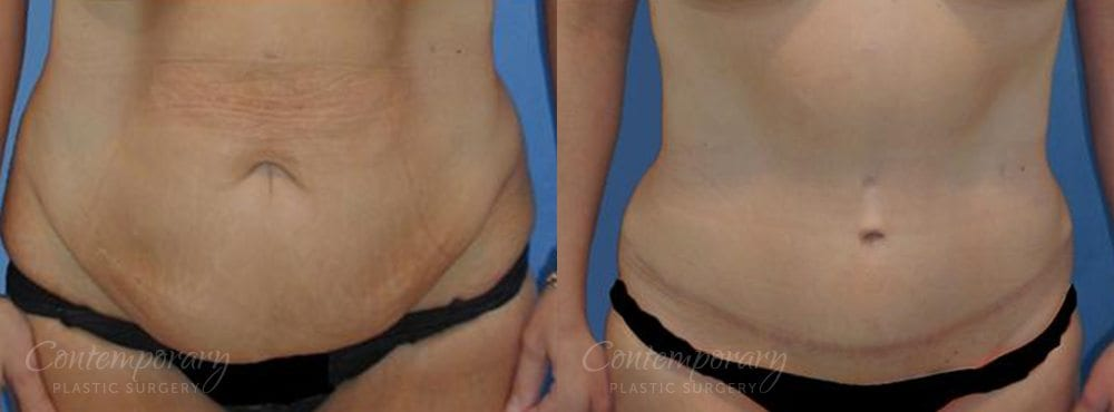 Case 19 Before and After Tummy Tuck Front View