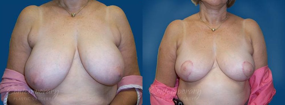 Case 22 Before and After Breast Reduction Front View