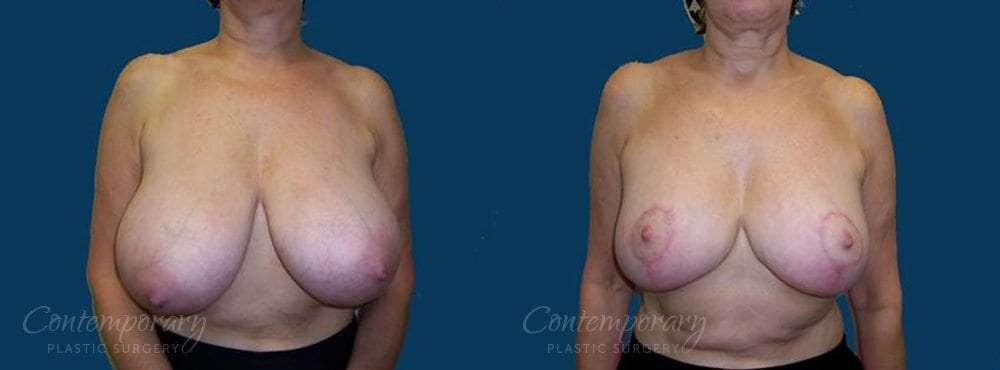 Case 25 Before and After Breast Reduction Front View