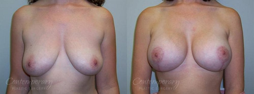 Case 3 Before and After Breast Lift Front View