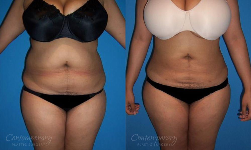 Case 4 Before and After Liposuction Front View