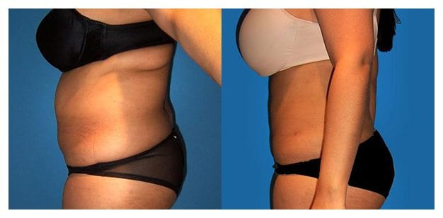 Case 4 Before and After Liposuction Left Side View With Black Dot Censoring