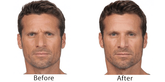 Botox Before and After of Male Model