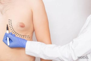 Doctor Marking Area Under Male Breast for Surgery